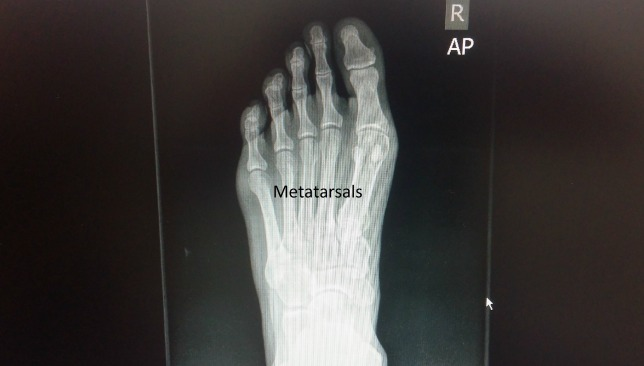 I have injured my third metatarsal.