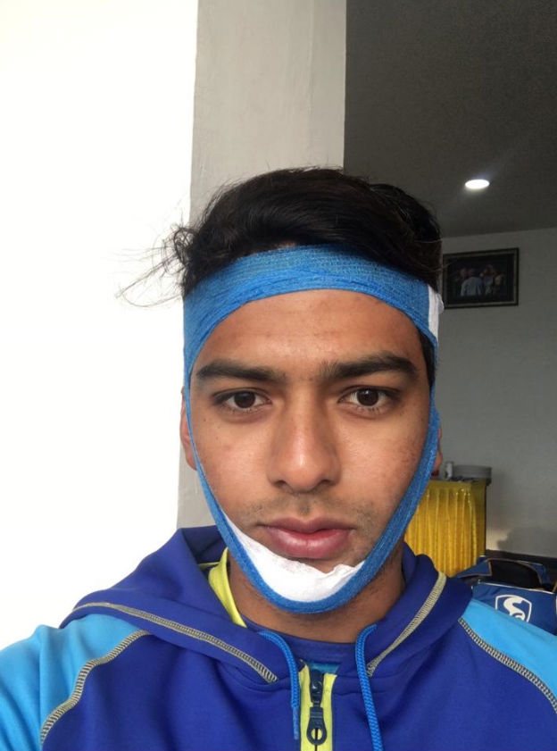 Chand batted with a bandaged jaw.